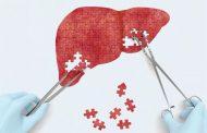 متاستاز کبدی ؛ نشانه ها، علل، روش های تشخیص و درمان