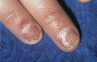 درمان پسوریازیس ناخن با کمک مواد طبیعی و روش های ساده