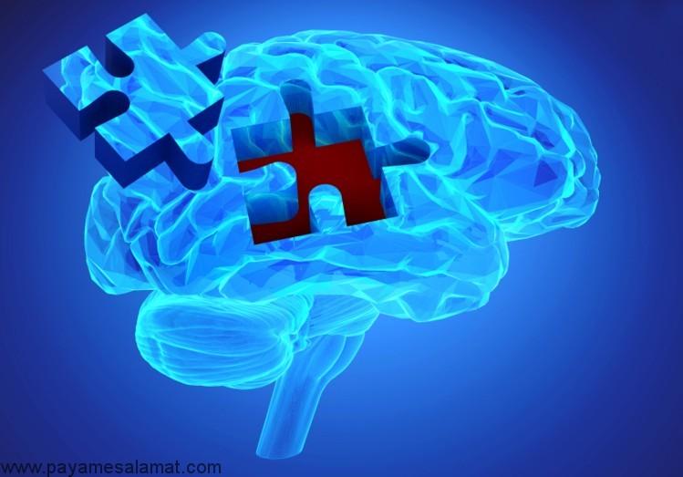 تاثیر ویتامین B3 روی کاهش علائم آلزایمر