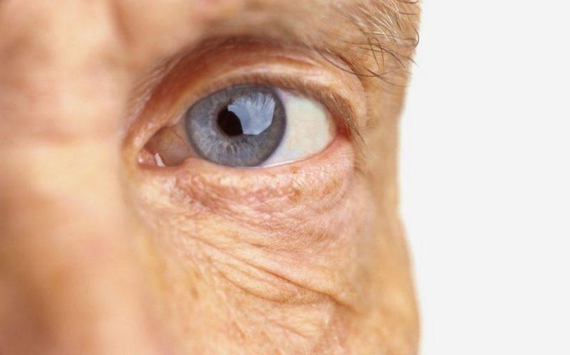 سارکوئیدوز چشم ؛ نشانه ها، علل و روش های تشخیص و درمان