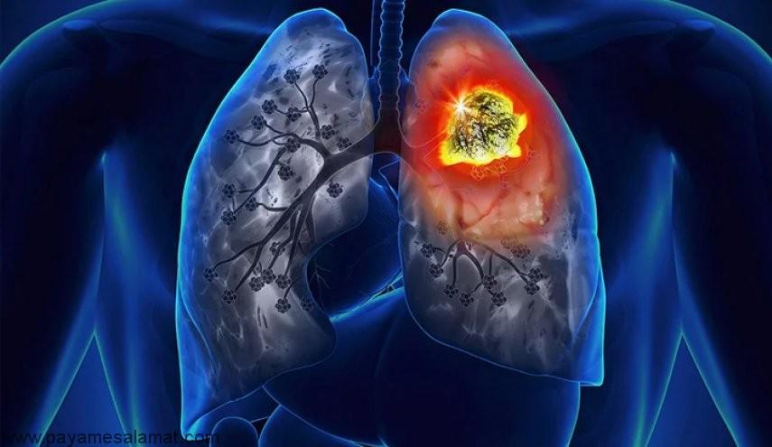 ارتباط مصرف ویتامین B و سرطان ریه