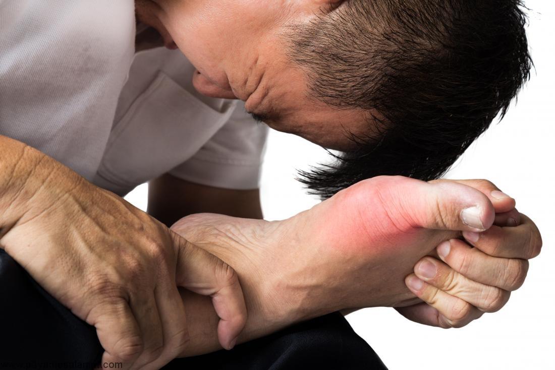۵ روش طبیعی برای درمان سندرم درد پیچیده منطقه ای