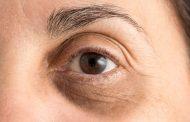 چروک زیر چشم ؛ علل، درمان های طبیعی و روش های پیشگیری