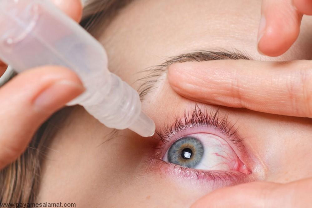 درمان آبریزش چشم به روش های سنتی و طبیعی