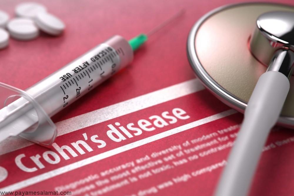 روش های درمان بیماری کرون