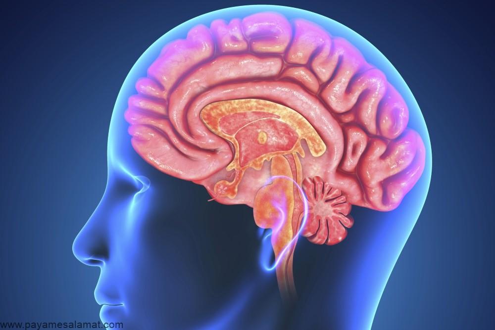 کیست آراکنوئید ؛ نشانه ها، علل، روش های تشخیص و درمان این بیماری