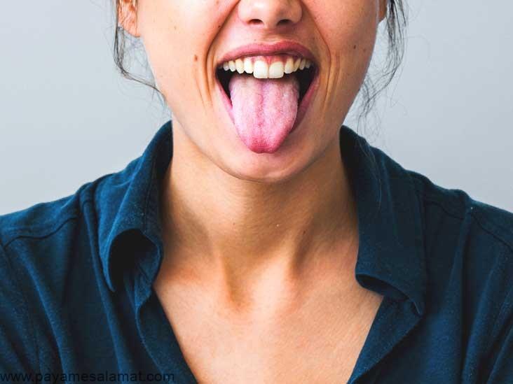 علل و روش های درمانمزه صابون در دهان