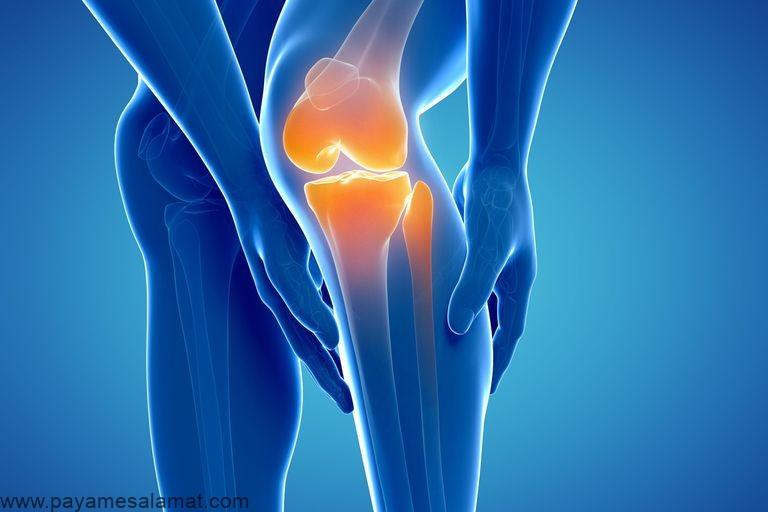 مکمل های مفید برای کاهش درد مفاصل و بهبود کیفیت زندگی