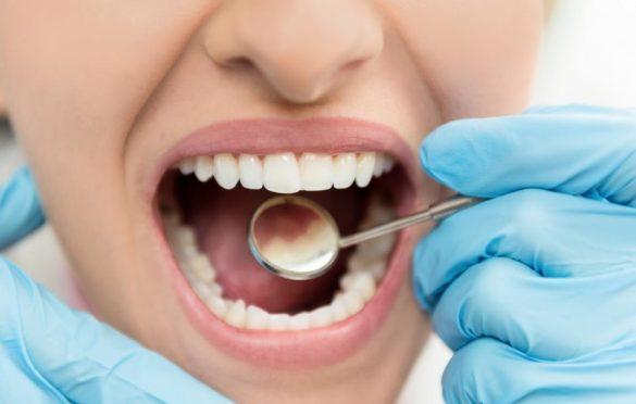 روش های درمان کرم خوردگی دندان