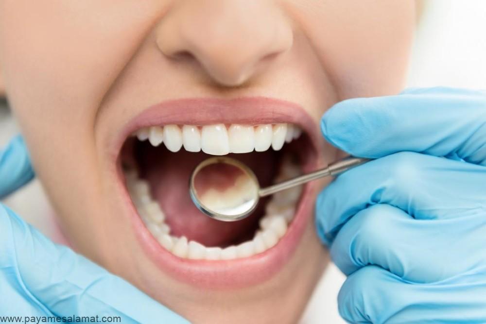 روش های درمان کرم خوردگی دندان و بهبود پوسیدگی آن