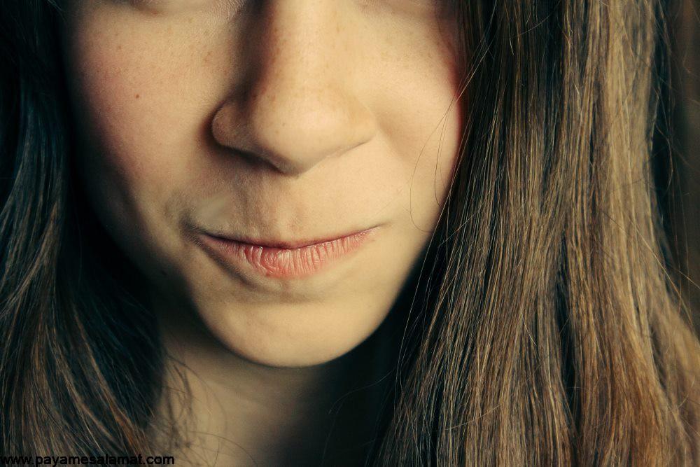 سوزن سوزن شدن صورت ؛ علل و درمان های طبیعی این عارضه