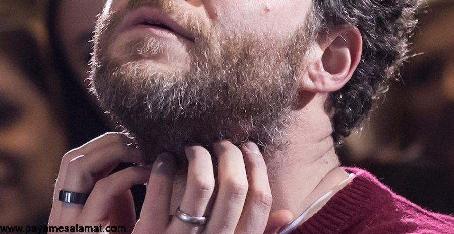 بررسی دلایل خارش ریش و درمان خارش ریش
